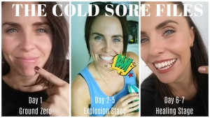 How to Kill a Cold Sore in Under 7 Days